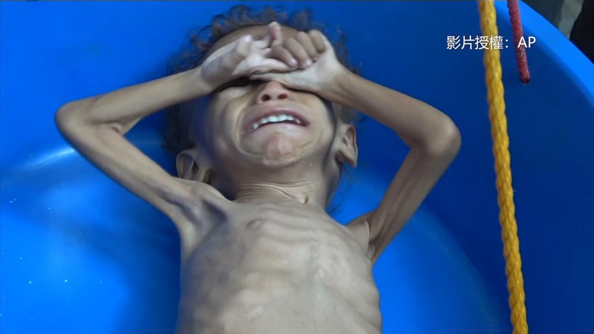 戰火無情!下一餐在哪裡? 這國家520萬孩童陷嚴重飢荒