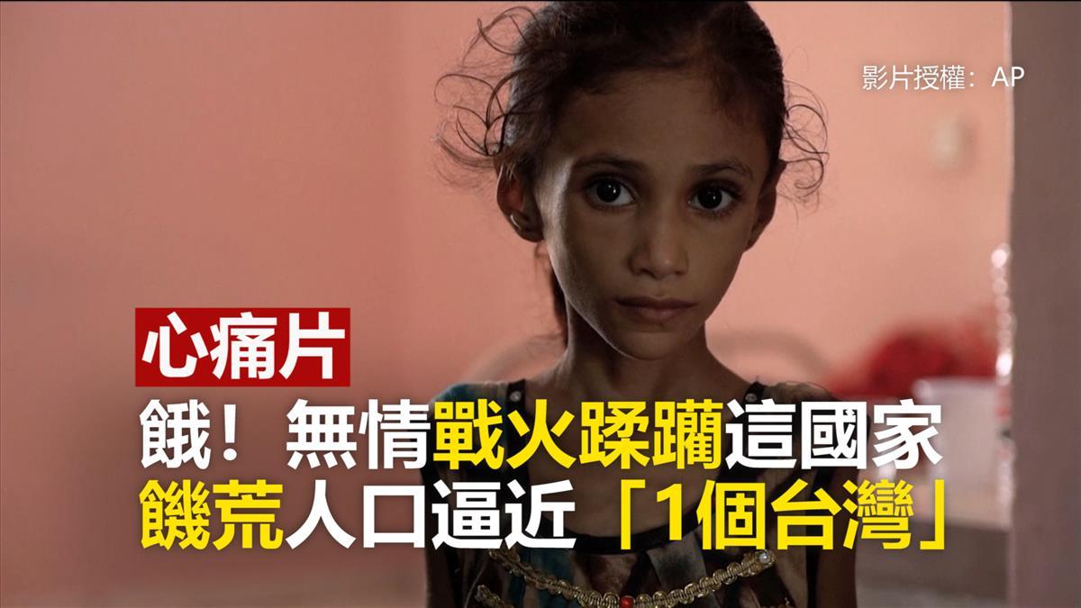 餓!無情戰火蹂躪這國家 饑荒人口逼近「1個台灣」